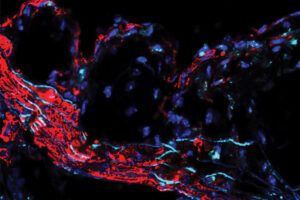 Scientists find genetic link to clogged arteries